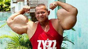Steroids Side Effects  U2013 These Drugs Can Cause Positive