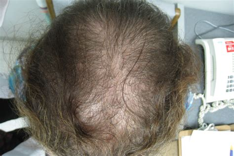 Thinning hair at the frontal scalp and crown - Clinical