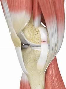 Ligament Injuries Cincinnati