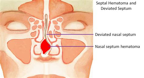 nose broken nasal fracture septal hematoma fix sinus septum deviated breathing swelling long repair dr labeled treatment quickly should rhinoplasty