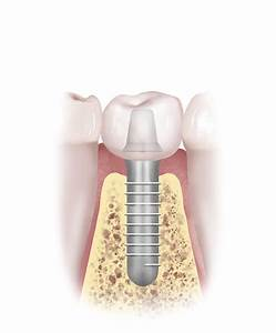 Posterior Tooth Replacement Procedures