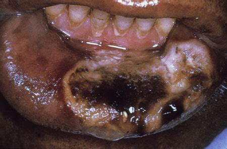 hivaids oral manifestations images hiv
