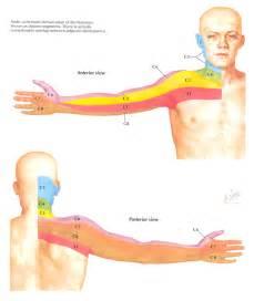 Shingles Arms Dermatomes