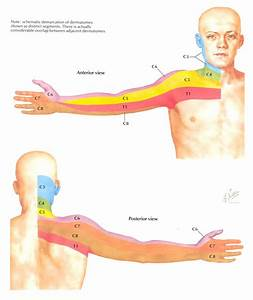 Dermatomes (Arm) 2 | Neurology | Pinterest | Acupuncture