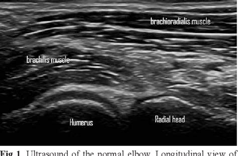 Figure 2 from Ultrasound assessment of the elbow ...