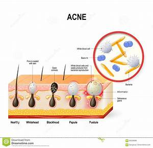 Acne Vulgaris Or Pimple  Stock Vector  Illustration Of