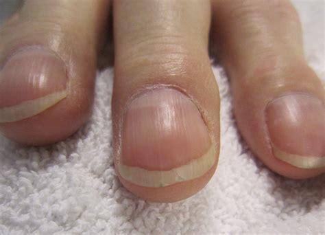 Nail, psoriasis, treatment, Symptoms of, psoriasis of the