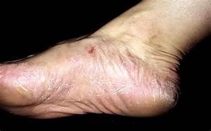Дезинфекция обуви от грибка ногтей в домашних условиях
