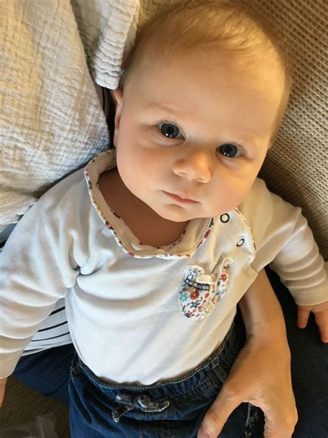5 Ways To Get Rid Of Cradle Cap Pondering Parenthood