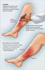 Cellulitis Diagram