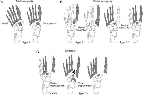 The usual mechanism is a direct blow or an indirect twisting force the lisfranc joint complex consists of the 5 tarsometatarsal joints that connect the forefoot and. Lisfranc fracture dislocation: a review of a commonly missed injury of the midfoot -- Lau et al ...