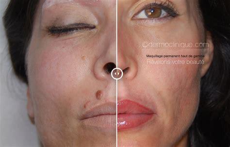 Maquillage Permanent Levres Raté