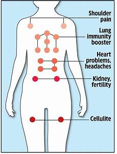 Cupping Points Diagram