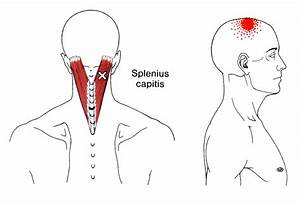 Pin On Neck App Anatomy For Omfs