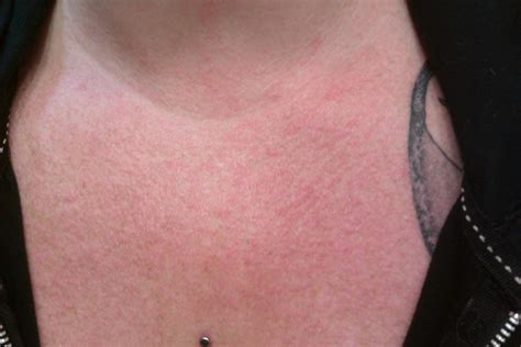 Skin Reaction To Thrive Patch A Online Health Magazine
