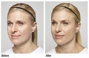 Botox fillers renewal Dermatology medSpa gainsville