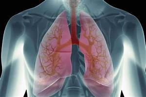 How To Remove Fluids From Lungs