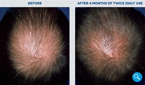 rogaine 174 before and after hair regrowth results rogaine 174
