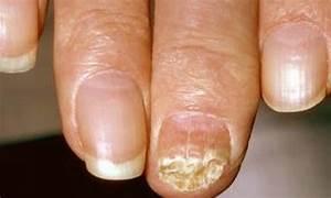 Самое лучшее средство лечения грибка ногтей на ногах