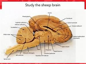 34 Label The Sheep Brain
