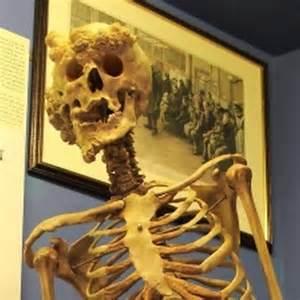 Joseph Merrick Elephant Man Bones