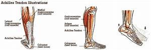 Achilles Tendonitis Information  U0026 Treatment Advice