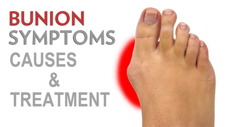 Bunions  Causes, Symptoms, And Treatment. Electrical Contractor Los Angeles. Moving Company Contract Online Courses Finance. Mosquito System Houston Online Class Schedule. Mississippi State Tuition Vokera Combi Boiler. Atlantic County College Online English Degree. Locksmiths In Fort Worth Tx Aarp Stands For. Criminal Attorneys California. Best Formula For Babies Fred Lawyer Insurance