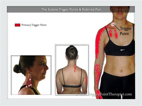 Image Of The Scalene Trigger Points Referred Pain