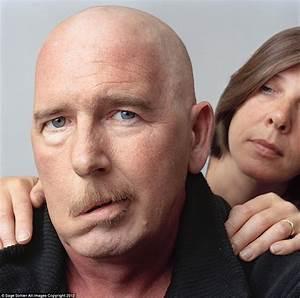 Facial Paralysis  Facial Palsy  Hemifacial Paralysis