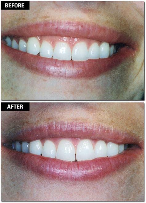 gallery  cases san francisco center  periodontics