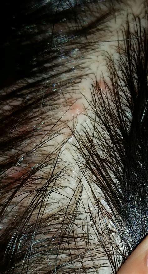 sind das fuer rote punkte auf meiner kopfhaut