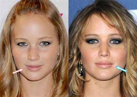 Jennifer Lawrence Is Hot Because Of Plastic Surgery