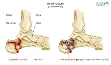 Diagram Of Heel Structure by Heel Fracture Rehab My Patient