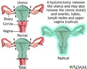 Endometriosis - University of Maryland Medical Center Uterine Diseases