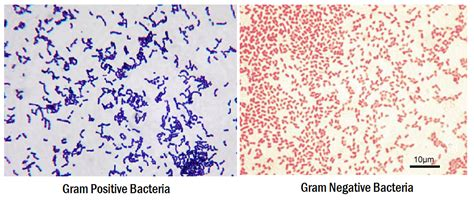 gram positive is what color gram staining principle procedure interpretation and