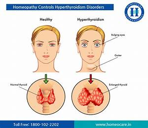 Thyroid Gland And Its Is Disorders  How To Overcome With Homeopathy