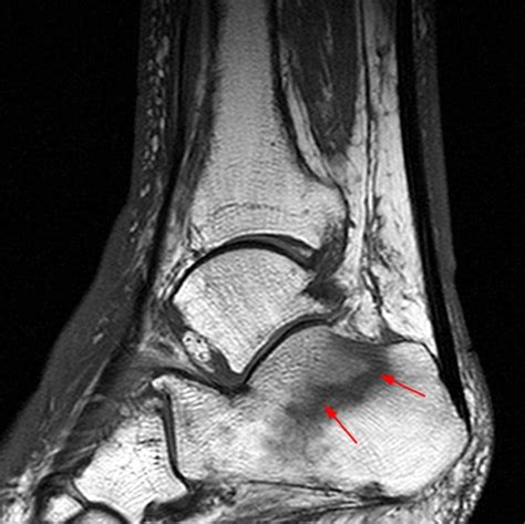 stress fractures   foot  ankle