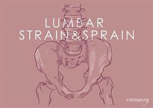 Lumbar Strain  U0026 Lumbar Sprain