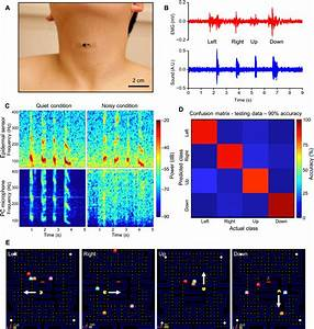 Epidermal mechano-acoustic sensing electronics for ...