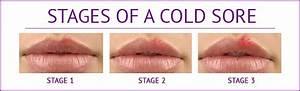 Identify Common Symptoms Of Herpes