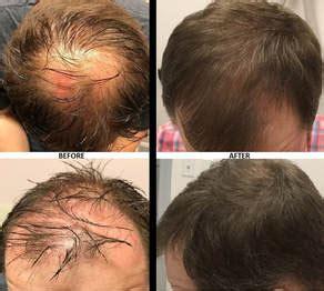 prp hair restoration cosmetic laser center