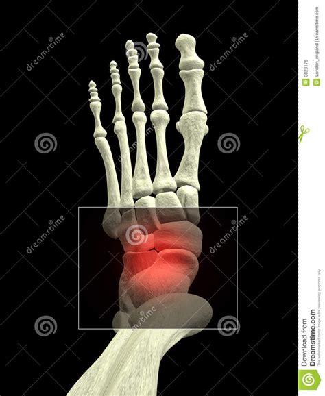 pied avec douleur de cheville image libre de droits