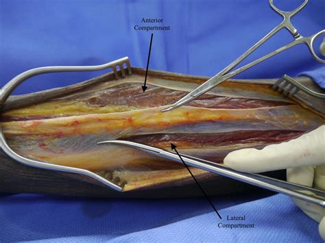 extremity compartment syndrome trauma surgery