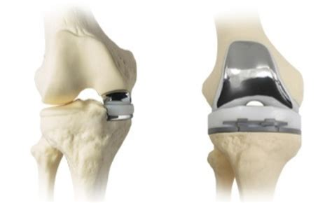 Partial knee replacement surgery – St George News