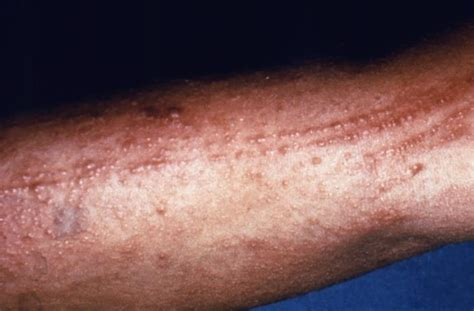 poison rash poison oak photos and treatment options