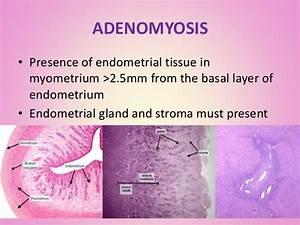 Benign Lesion Of The Uterus