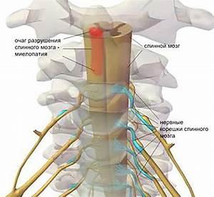 Лечение артроза грудино-ключичного сустава