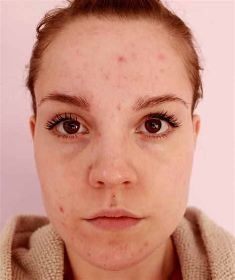 Face With Few Pimples Wwwpixsharkcom Images