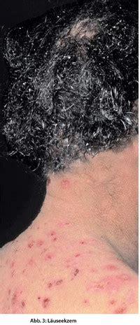milben laeuse floehe symptome den parasiten zuordnen