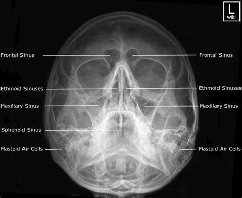 radiography sinuses waters medical bones facial sinus anatomy maxillary job radiographic study